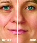 Anti-aging: Reduces wrinkles and brown spots, while improving overall tone and complexion