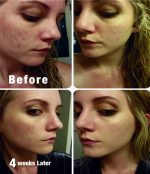 Acne and Hyperpigmentation: Reduces breakouts and scarring, and evens out complexion