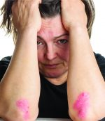 Skin Rashes: Treats psoriasis, rosacea, eczema, severely dry skin, and other skin irritations
